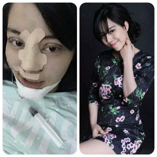 9X phẫu thuật thẩm mỹ toàn mặt vì sợ chồng 'chán'