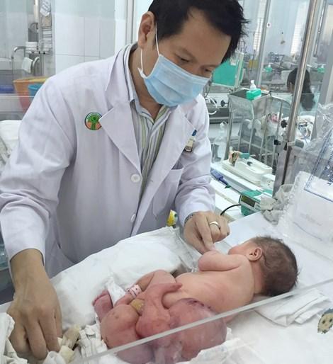 Cắt bỏ khối u quái nặng gần 1 kg cho bé sơ sinh - 1