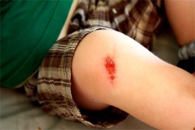 6 dấu hiệu vết thương nhiễm trùng và cách chăm sóc - 1