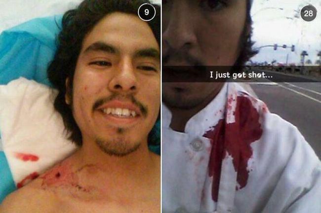 Martinez, 20 tuổi là một nhân viên nhà hàng tại thành phố Mesa, Arizona. Anh này đã bị một tên cướp có vũ trang bắn một phát vào người. Tuy nhiên sau khi bị thương, Martinez không hoảng loạn chút nào. Anh chàng thậm chí còn chụp lại một bức ảnh tự sướng khi mới bị bắn xong.