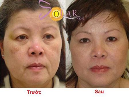 Khuyến mại 60% căng da mặt không phẫu thuật 1 lần duy nhất - 2