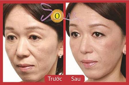 Khuyến mại 60% căng da mặt không phẫu thuật 1 lần duy nhất - 3