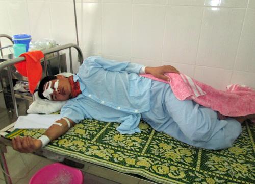 Vụ sập giàn giáo: Thêm 1 nạn nhân đang cấp cứu ở Huế - 1