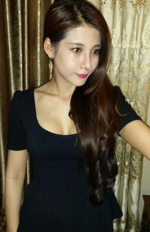 Cô gái Việt đăng ảnh phẫu thuật toàn thân gây sốc - 5
