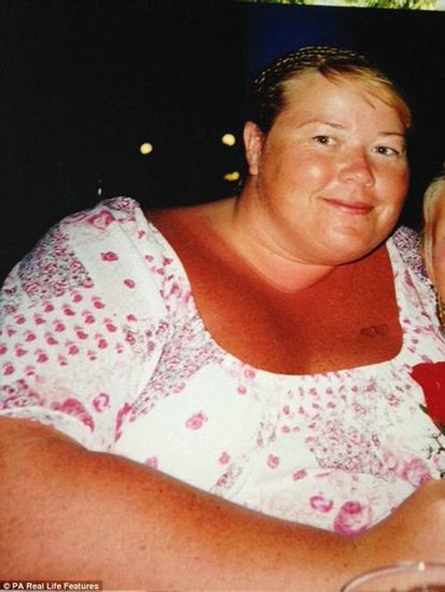 Người phụ nữ nặng 200kg giảm cân vì sợ chồng bỏ - 1