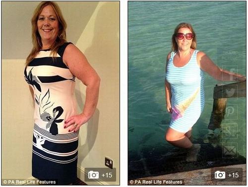 Người phụ nữ nặng 200kg giảm cân vì sợ chồng bỏ - 3