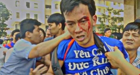 TP.HCM: Cư dân chung cư lại bị tấn công đổ máu - 2