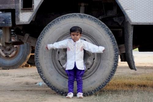 Bé trai 15 tuổi chỉ cao 81cm ở Ấn Độ - 2