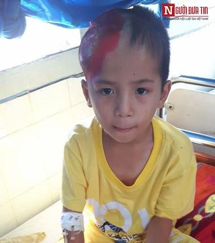 Xót xa bé trai 8 tuổi vật vã đau đớn vì ghép não - 1