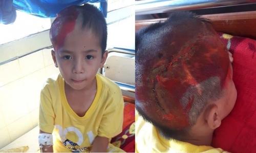 Xót xa bé trai 8 tuổi vật vã đau đớn vì ghép não - 2