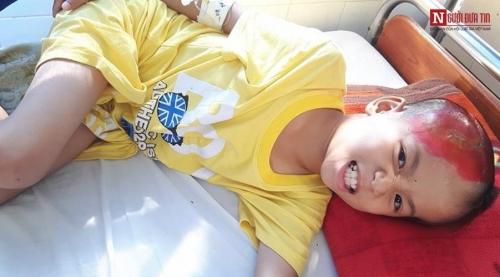 Xót xa bé trai 8 tuổi vật vã đau đớn vì ghép não - 3