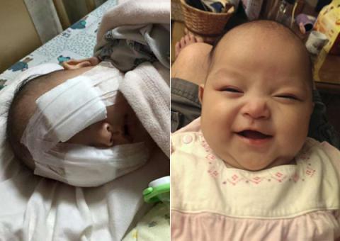Xót thương bé gái 8 tháng tuổi bị hỏng hai mắt vì ung thư - 1