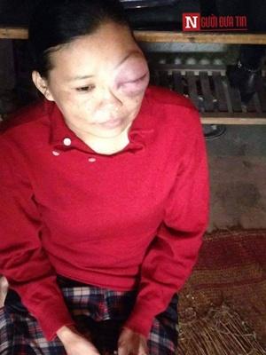 Bi kịch cuộc đời người phụ nữ mắt như gấu trúc - 1