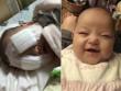 Xót thương bé gái 8 tháng tuổi bị hỏng hai mắt vì ung thư