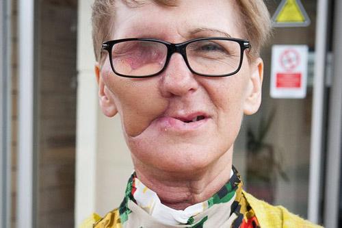"""Người phụ nữ dũng cảm công khai gương mặt """"méo mó"""" vì ung thư - 2"""
