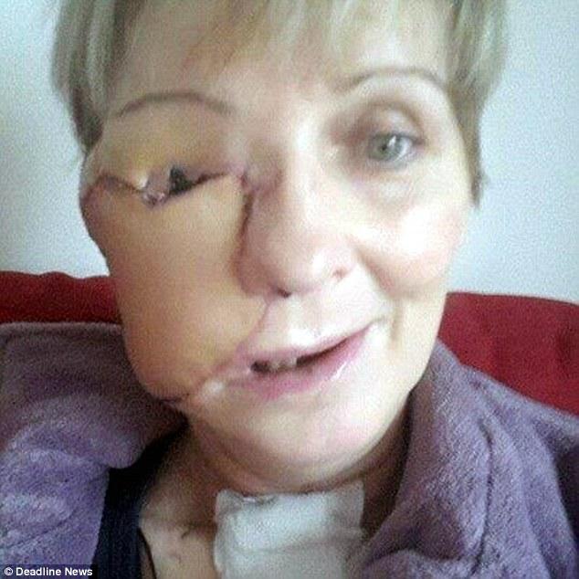 """Người phụ nữ dũng cảm công khai gương mặt """"méo mó"""" vì ung thư - 3"""