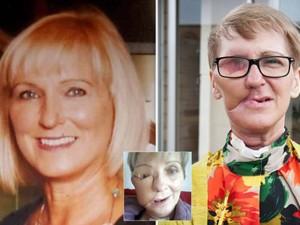"""Bạn trẻ - Cuộc sống - Người phụ nữ dũng cảm công khai gương mặt """"méo mó"""" vì ung thư"""