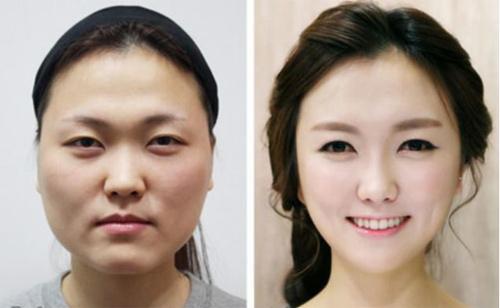 Kỳ lạ: Bố mẹ 'lùa' con đi tân trang nhan sắc ở xứ Hàn - 1