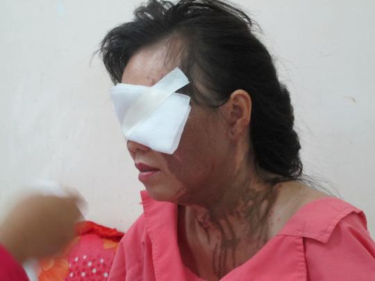 Một phụ nữ bị tạt axit tại trung tâm TP HCM - 1