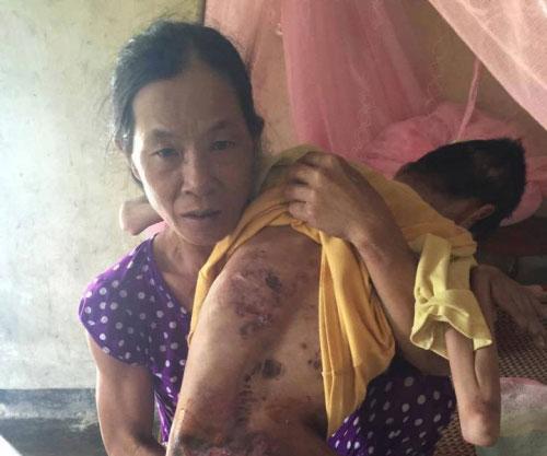 Gia cảnh nghèo khó của vợ chồng già nuôi con bại liệt - 1