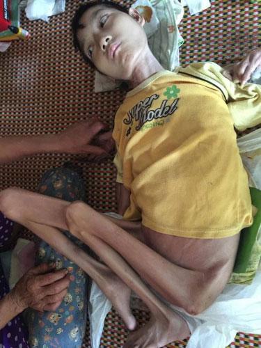 Gia cảnh nghèo khó của vợ chồng già nuôi con bại liệt - 2