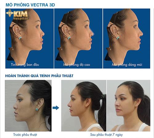 Nhận diện công nghệ nâng mũi S line 3D và nâng mũi thông thường - 3