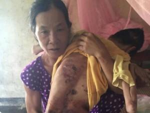 Gia cảnh nghèo khó của vợ chồng già nuôi con bại liệt