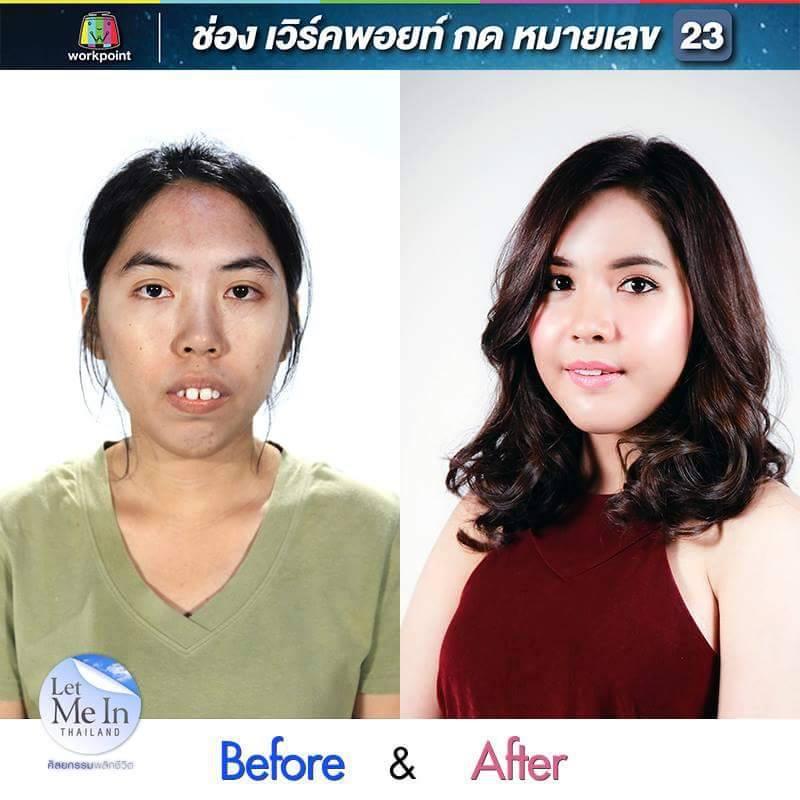 Cô gái Thái Lan răng hô 'lột xác' bất ngờ nhờ thẩm mỹ - 1