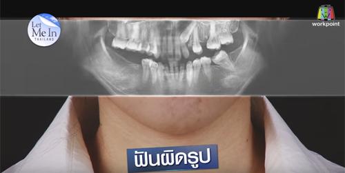 Cô gái Thái Lan răng hô 'lột xác' bất ngờ nhờ thẩm mỹ - 2