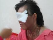 An ninh Xã hội - Chồng thuê giang hồ tạt axit vợ cũ