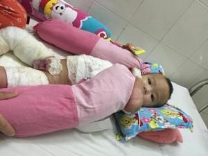 Xót thương bé 1 tuổi bỏng nặng do ấm nước sôi