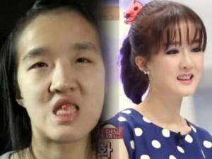 Bà mẹ Hàn Quốc xinh như hot girl sau khi 'dao kéo'