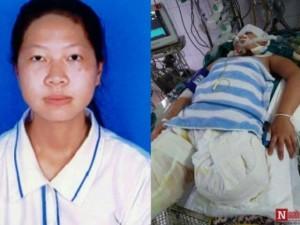 Bi kịch thiếu nữ mất chân vì lao vào cứu cha bị điện giật