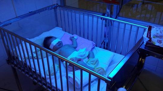 Mẹ cắn đứt ngón tay con 2 ngày tuổi cho… dễ nuôi - 1
