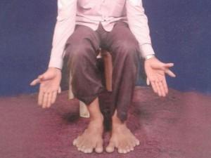 Người đàn ông có tới 28 ngón tay và chân