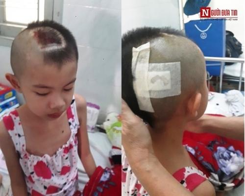 Bé gái xinh xắn bị bố mẹ bỏ rơi nay đối mặt với u não - 2
