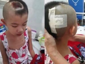 Bé gái xinh xắn bị bố mẹ bỏ rơi nay đối mặt với u não