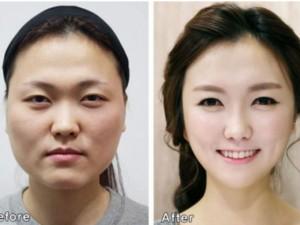 Ám ảnh ngoại hình của người dân Hàn Quốc