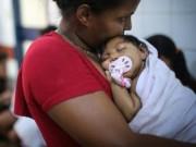 Sức khỏe đời sống - Cập nhật 5 điều mới nhất về dịch Zika