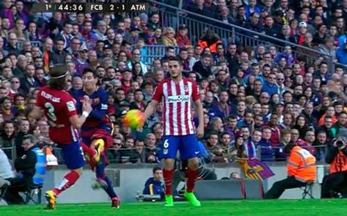 Rợn tóc gáy với đầu gối sưng đỏ vì bị đạp của Messi - 1