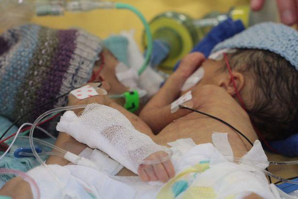 Phẫu thuật tách thành công cặp đôi song sinh dính liền ít tuổi nhất - 1