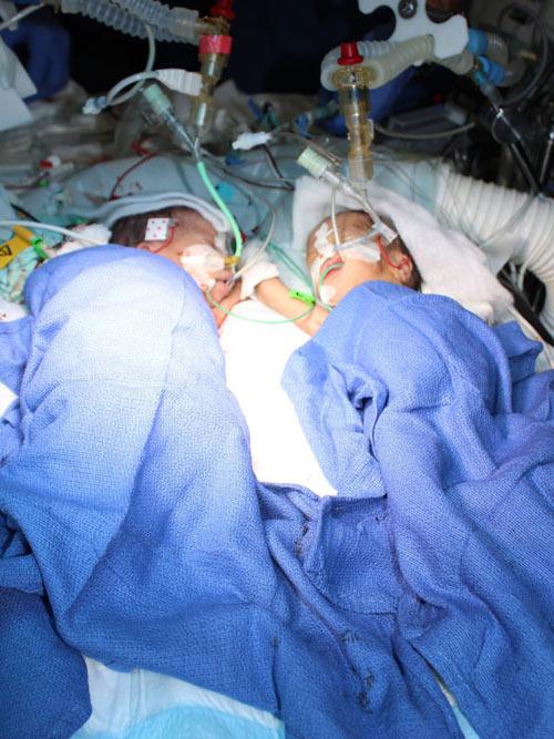 Phẫu thuật tách thành công cặp đôi song sinh dính liền ít tuổi nhất - 3