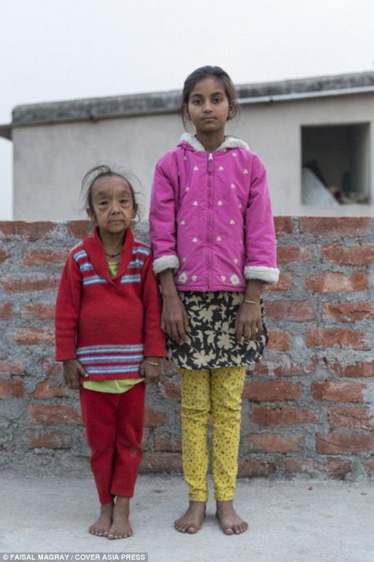 Ấn Độ: Hai chị em ruột cùng bị lão hóa - 2