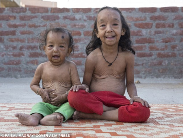 Bệnh lạ khiến hai đứa trẻ hóa cụ già - 1
