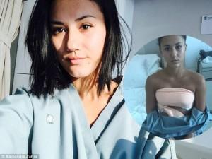 Tự ti vì bị chê ngực lép, cô gái quyết tâm nâng ngực