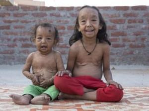 Bệnh lạ khiến hai đứa trẻ hóa cụ già