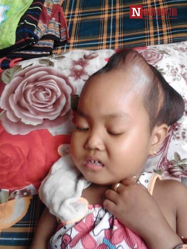 Xót xa bé gái co giật liên hồi vì mắc chứng u não - 1