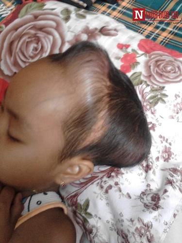 Xót xa bé gái co giật liên hồi vì mắc chứng u não - 2