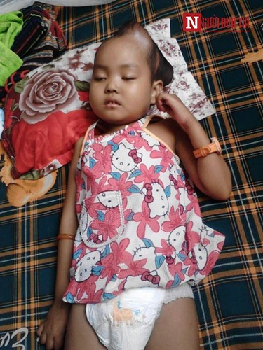 Xót xa bé gái co giật liên hồi vì mắc chứng u não - 3