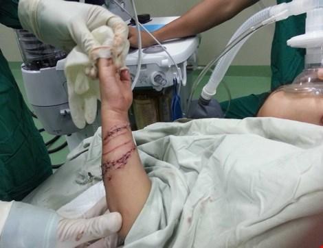 Bé trai 4 tuổi bị cá sấu cắn nát tay - 2